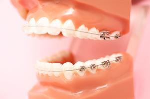 矯正歯科イメージ画像
